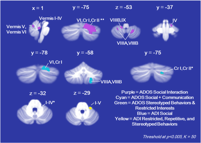 Embrace ASD | Autistic brain differences – Cerebellum | diagram CerebellumGMAffected