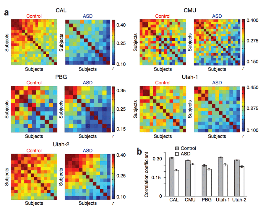 Embrace Autism | Autistic brain differences: Connectivity | diagram InterhemisphericConnectivity