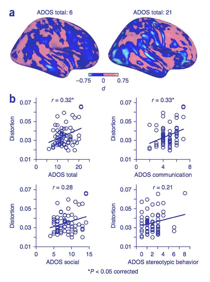 Embrace ASD | Autistic brain differences: Connectivity | diagram PatternDistortionsASDSymptoms