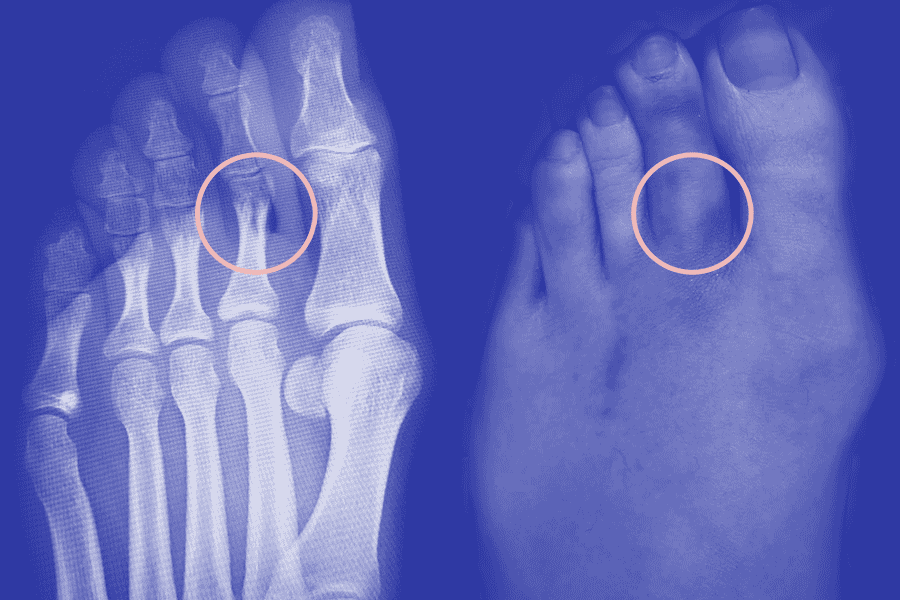 An x-ray of my foot, showing a broken toe. Next to it is a photo of my foot, showing a bruised and enlarged toe.