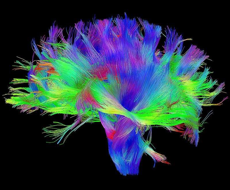 Embrace ASD | Autistic brain differences: Connectivity | image HumanConnectome