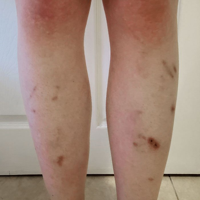 A photo of my legs which is full of bruises and older wounds.